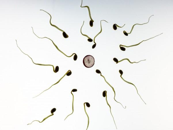 Causas de la infertilidad - Varicocele